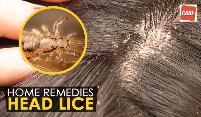 Home Remedies For Lice Free Share